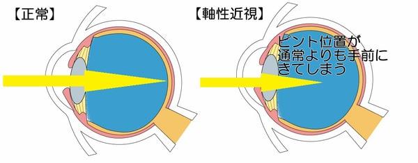 軸性近視とは