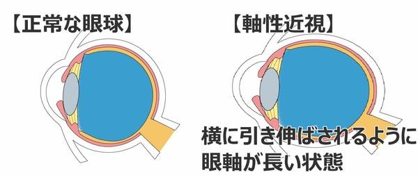 病的近視 軸性近視
