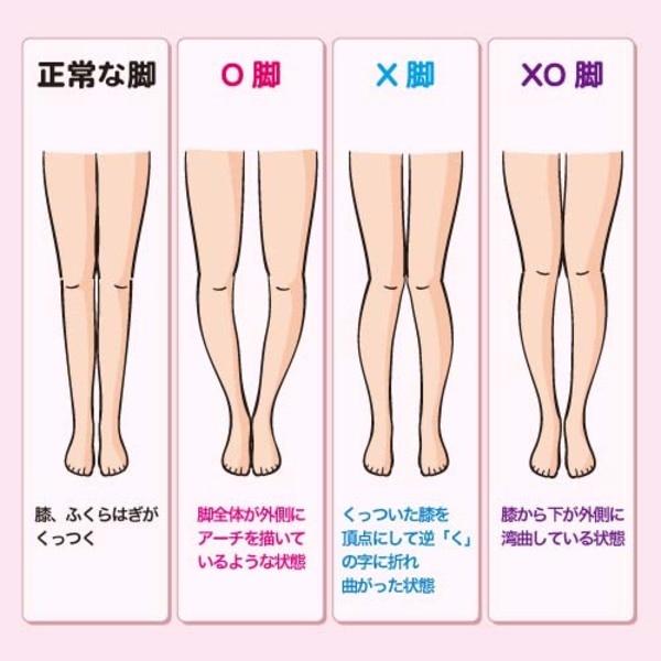 O脚 X脚 種類
