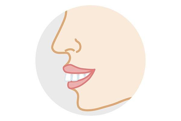 出っ歯を矯正するための費用と期間、安く抑える方法とは?