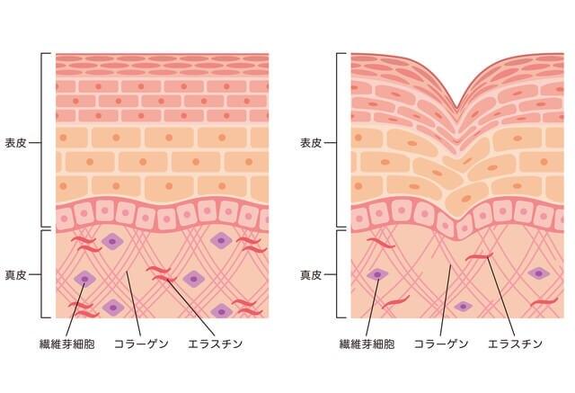 真皮層のコラーゲン、エラスチン、線維芽細胞