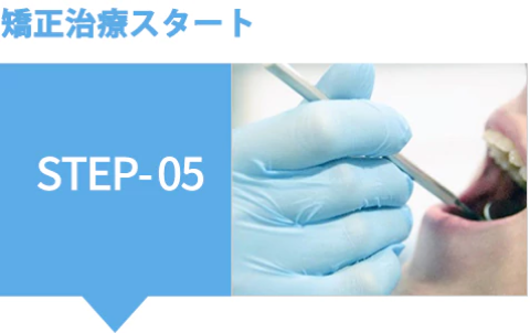 矯正治療スタート STEP-05