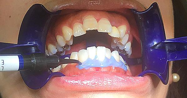 歯肉と唇の保護