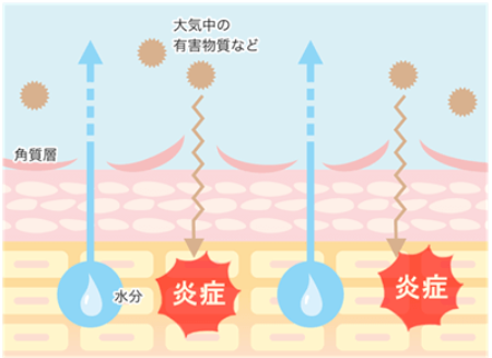 乾燥肌の原因 微弱炎症