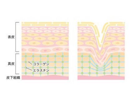 幹細胞コスメ